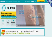 Инновационное Лечение Варикоза - Варифорт - Новодмитриевская